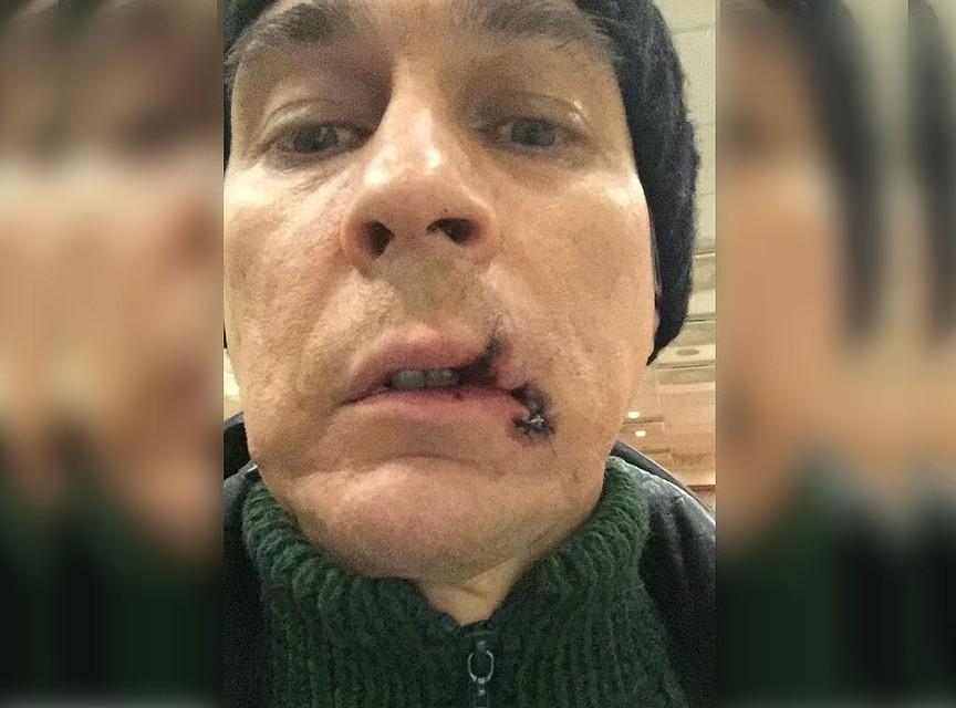 Оперный певец из Уфы порвал рот во время спектакля в Екатеринбурге