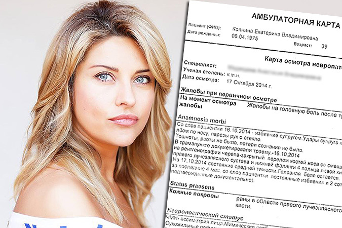 За пять месяцев брака жена Башарова заработала три сотрясения мозга