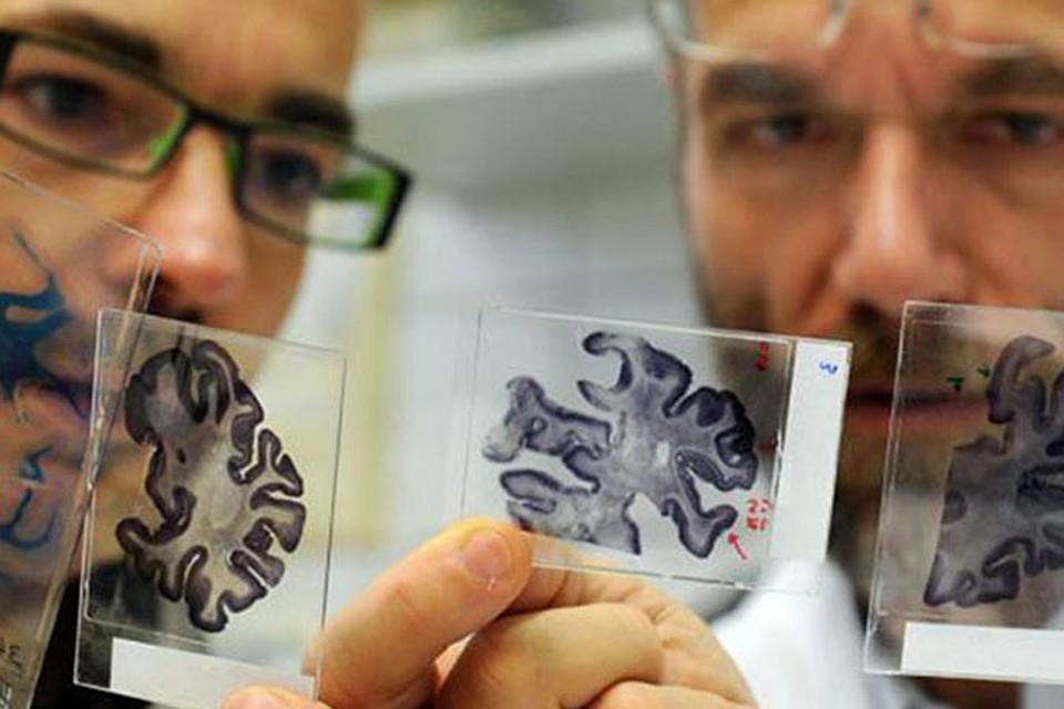 Болезнь Альцгеймера — прогрессирующая форма деменции