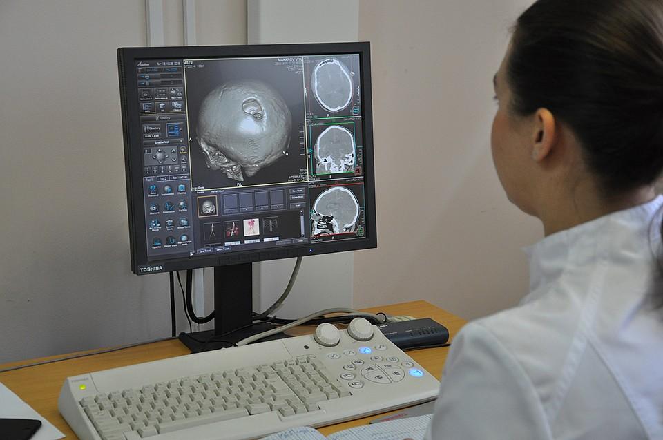 В ОКБ рязанцу восстановили череп с помощью 3D-принтера f395882b4d548