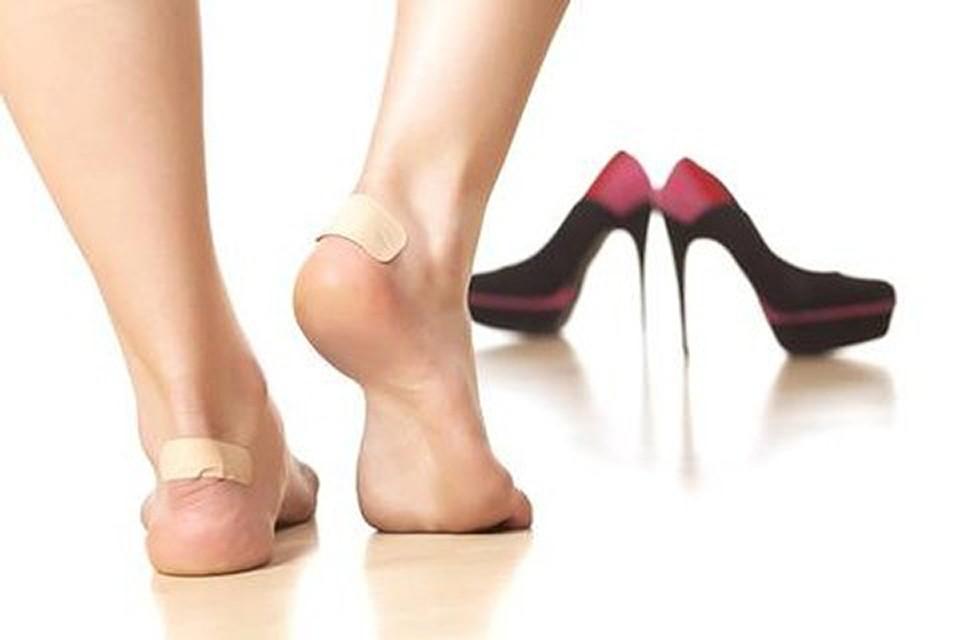 Тесная и неудобная обувь - главная и самая распространенная причина мозолей
