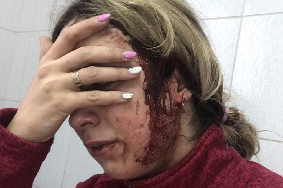 Скорая доставила женщину в больницу, где ей наложили швы.