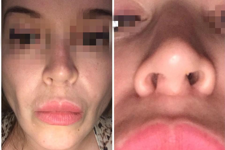 Александра хотела скорректировать тело и лицо, а в итоге ей пришлось восстанавливаться после операции.