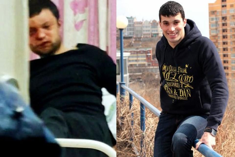 Жизнерадостный Дима может остаться инвалидом. Фото: предоставлено «Комсомолке» родственниками
