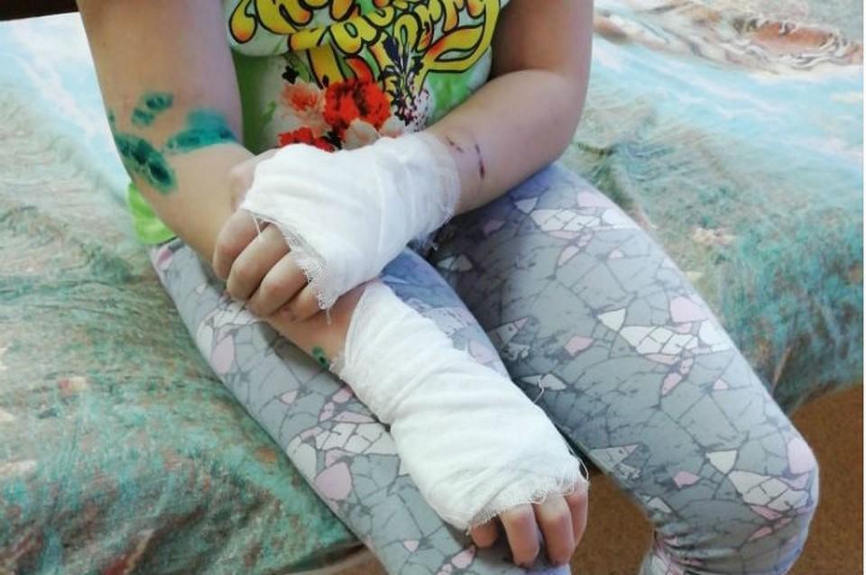 Напала сзади и начала рвать: взбесившаяся хаски прокусила руки и ноги 9-летней девочке из Братска. Фото: предоставлено Анной Мазитовой.