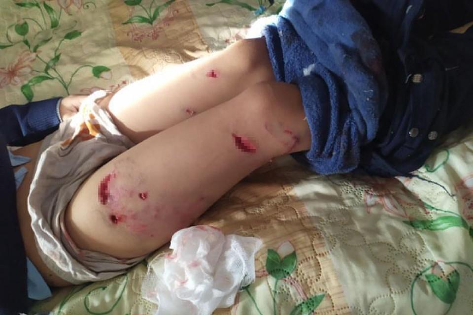 Так выглядят раны ребенка.