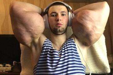 """На путь Господа: Кирилл Терешин уйдет в монастырь после операции на """"руки-базуки"""""""