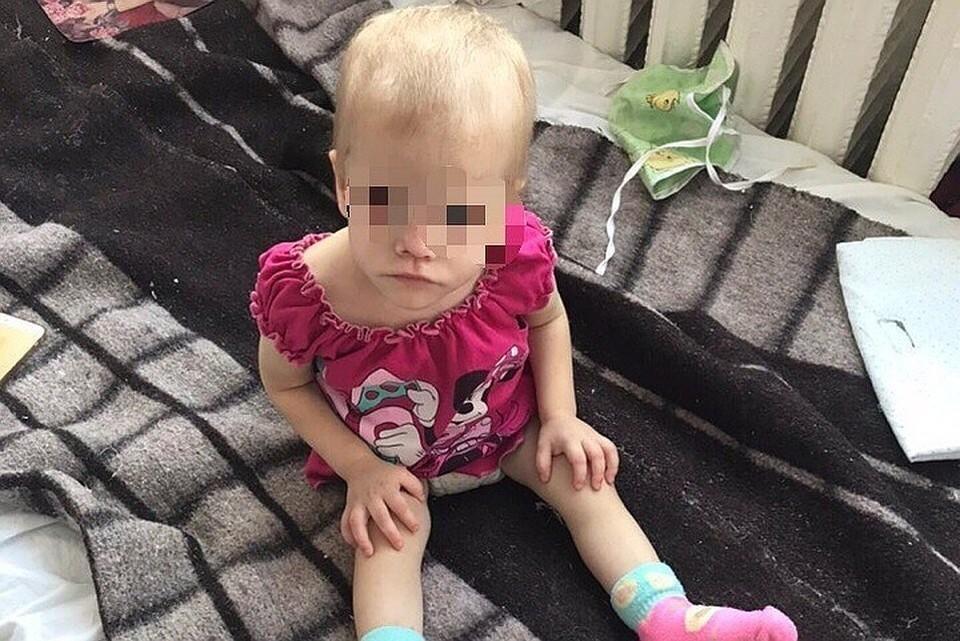Малышка попала в больницу в июне 2018 года с травмой головы, она была крайне истощена. Фото: предоставлено волонтерами