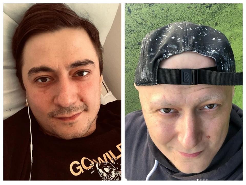 Болезнь и химиотерапия изменили внешность Евгения, но оптимизма и чувства юмора наш земляк не потерял. Фото: личная страница героя в Instagram.