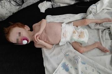 Главный врач ОДКБ № 1 рассказал о состоянии девочки, которую полгода морили голодом в шкафу