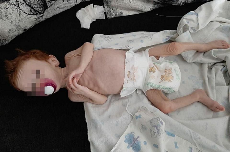В тяжелом состоянии девочку доставили в ОДКБ № 1 Екатеринбурга. Фото: предоставлено знакомыми семьи Зыковых