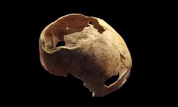 Археологи нашли в Крыму череп эпохи бронзы со следами трепанации