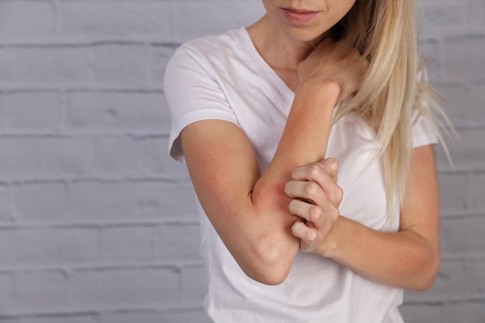 Кожный зуд может быть признаком рака