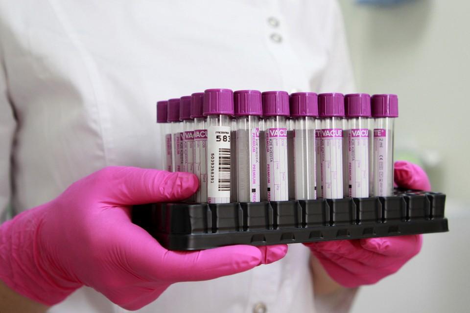 Еще 11 пациентов с коронавирусом умерли в Иркутской области