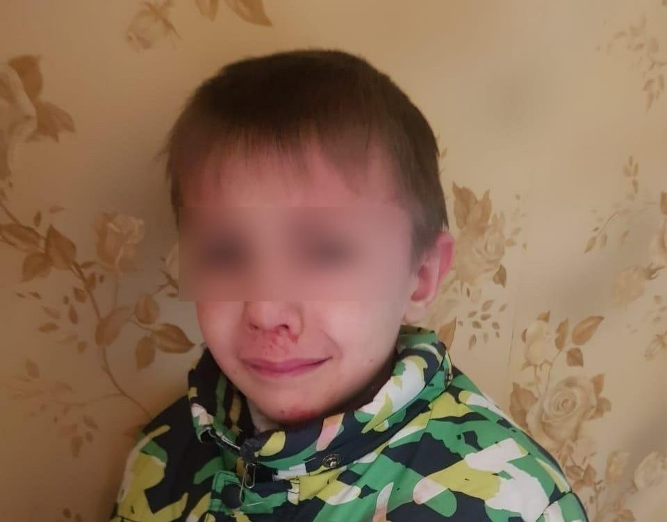 Мужчина жестоко пинал мальчика в лицо и бросал на пол.