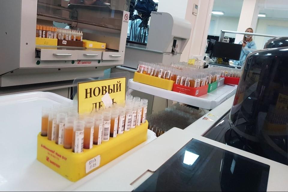 За прошедшие сутки в лабораториях региона выполнено 2463 исследования на COVID-19.