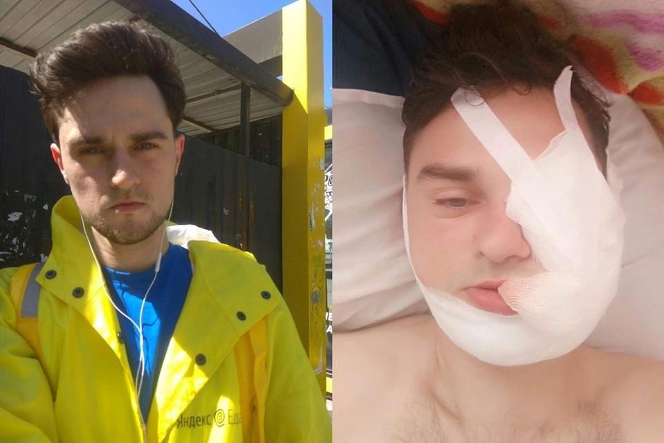 Доставщик еды, избитый водителем иномарки, был застрахован на крупную сумму денег. Фото: Сергей Улитин