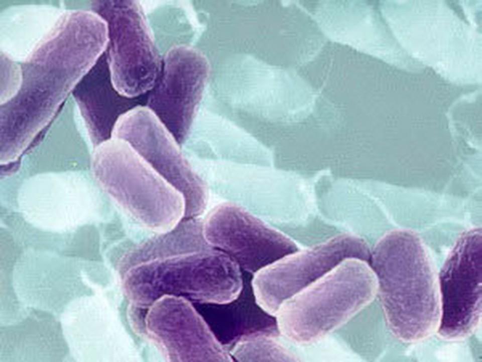 """Несколько лет назад """"бактерию Брушкова"""" (именно так она называется - Прим. авт.) обнаружили в вечной мерзлоте в Якутии."""