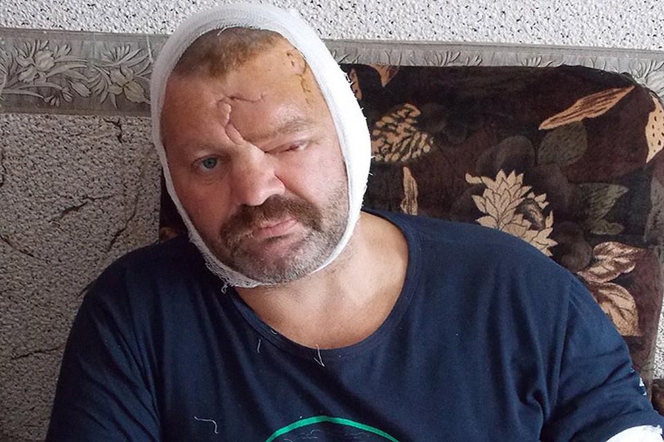 Игорь Ворожбицын после схватки с медведем