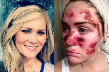 Чтобы предупредить любителей солярия, американка с раком кожи сделала селфи