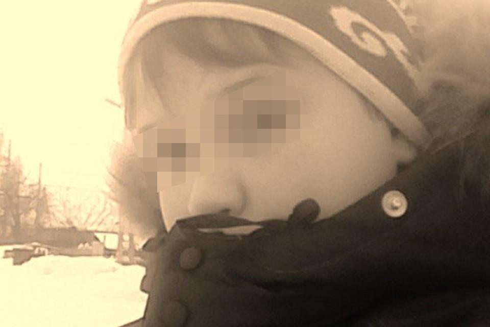 Юный бердчанин хотел попробовать электронную сигарету, но она взорвалась прямо у него перед лицом.