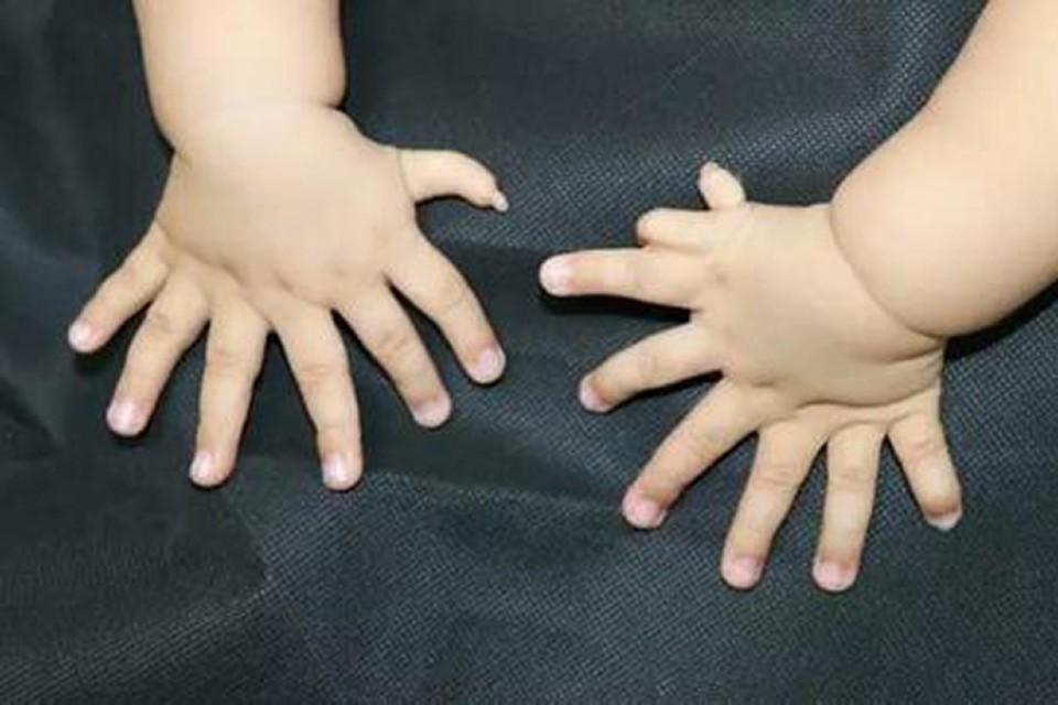 Ребенок родился с аномалией из-за нестандартной генетики своей матери генетике