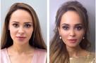 Бывшая невеста Шаляпина сделала себе новый нос и уменьшила лицо