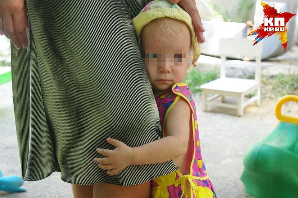Ветряная оспа у ребенка фото