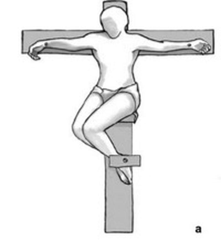 """""""Правильное"""" расположение ног казненного согласно мнению археологов."""