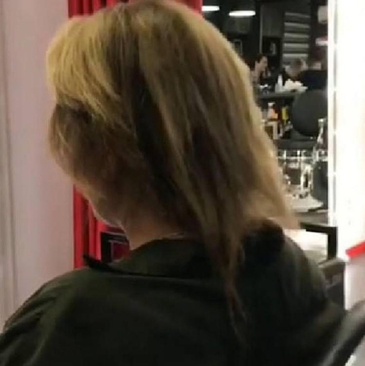 У 37-летней Юлии Началовой осталось всего несколько прядей «живых» волос
