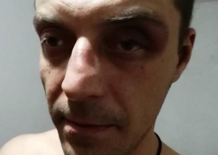 Сразу после избиения Максим зафиксировал побои. Фото: предоставлено пострадавшим