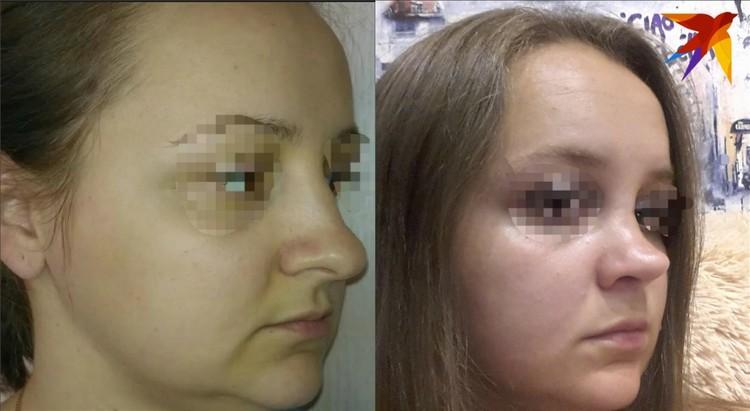 Кристина до операции (слева) и после хирургического вмешательства.