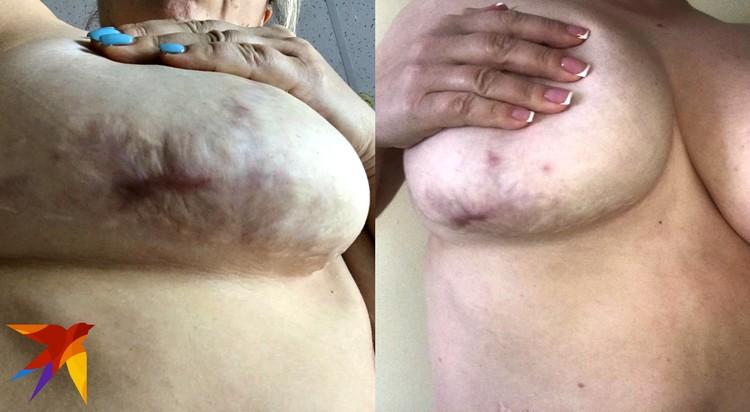 Под грудью у пациентки появились гематомы, которые могли привести к некрозу тканей.