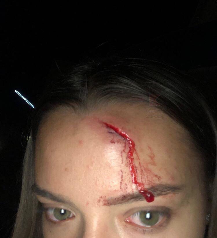 У сотрудницы стрелкового клуба разбит лоб