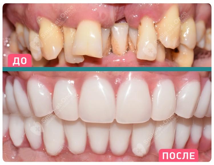 При пародонтите имплантация часто становится единственно возможным решением проблемы – если нет возможности вылечить и сохранить зубы, которые разрушены и выпадают.