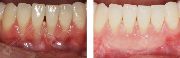 Эффект от комплексного лечения пародонтита, в том числе с использованием препаратов для восстановления тканей пародонта.