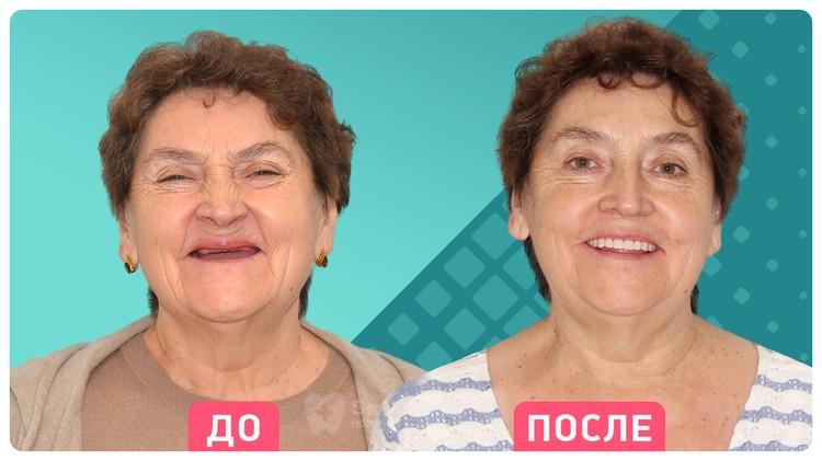 Эффект омоложения после имплантации всех зубов за 3 дня. Фoто: Smile-at-Once