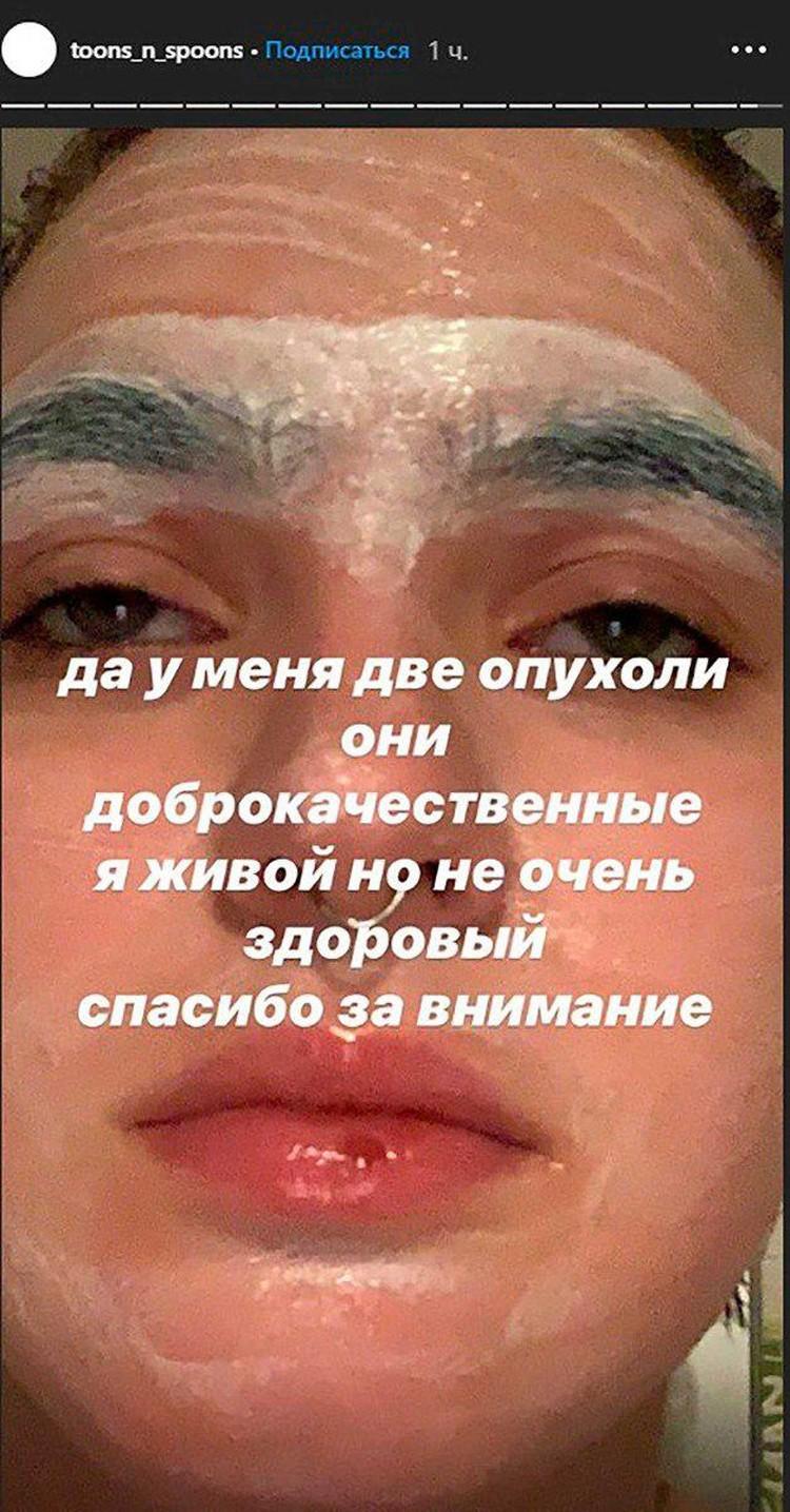 Дочь Ларисы Гузеевой раскрыла подробности болезни