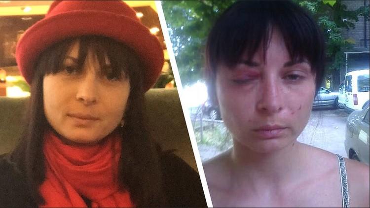 3- Дарья Мастикашева до и после пыток в СБУ. Фото: Фейсбук адвоката Валентина Рыбина