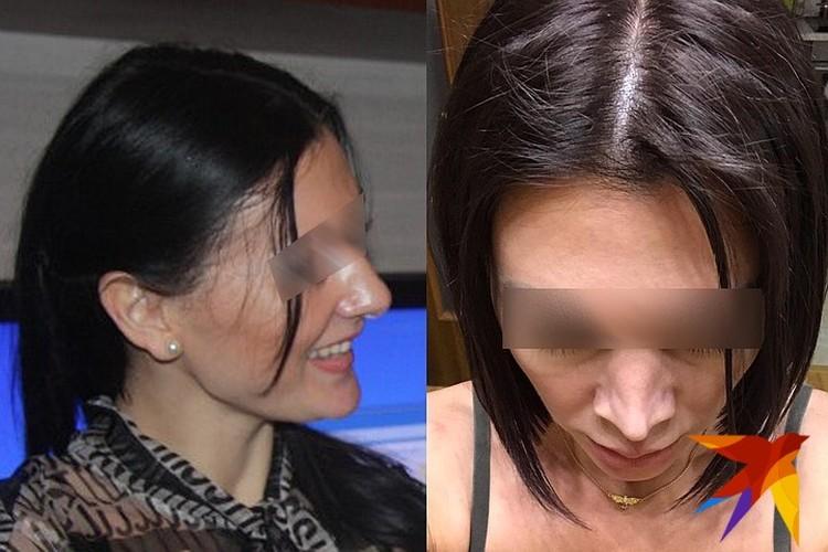 После ринопластики Ирина изменилась до неузнаваемости. Фото героя публикации