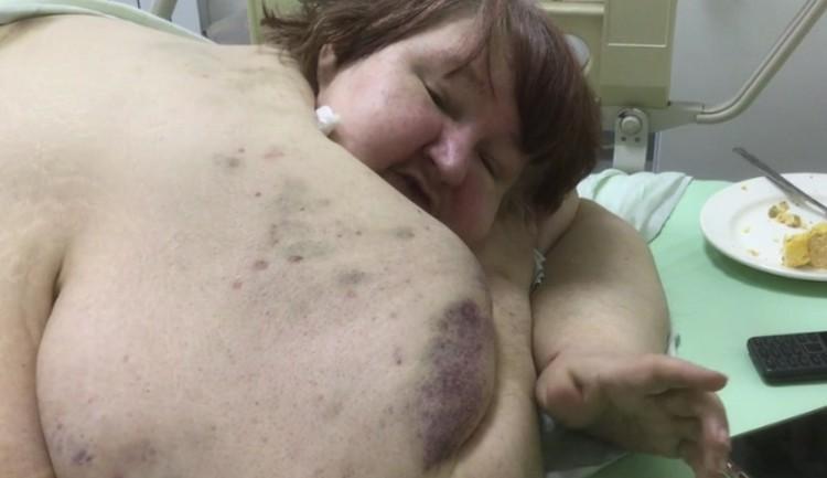 В больнице Любовь кормят нежирной пищей. Фото: скриншот