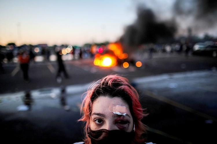 """За пару суток уличного противостояния с полицией участники погромов успели обзавестись """"боевыми ранами""""."""
