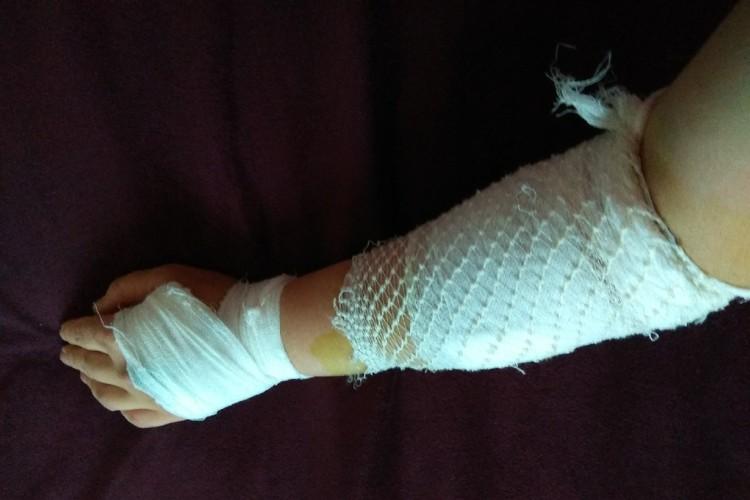 Татьяна беременная сутки ходила с грязными осколками в зашитой руке. Фото: предоставлено героем публикации