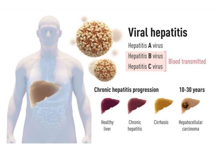 Гепатит доводит до церроза печени, а витоге и до рака.