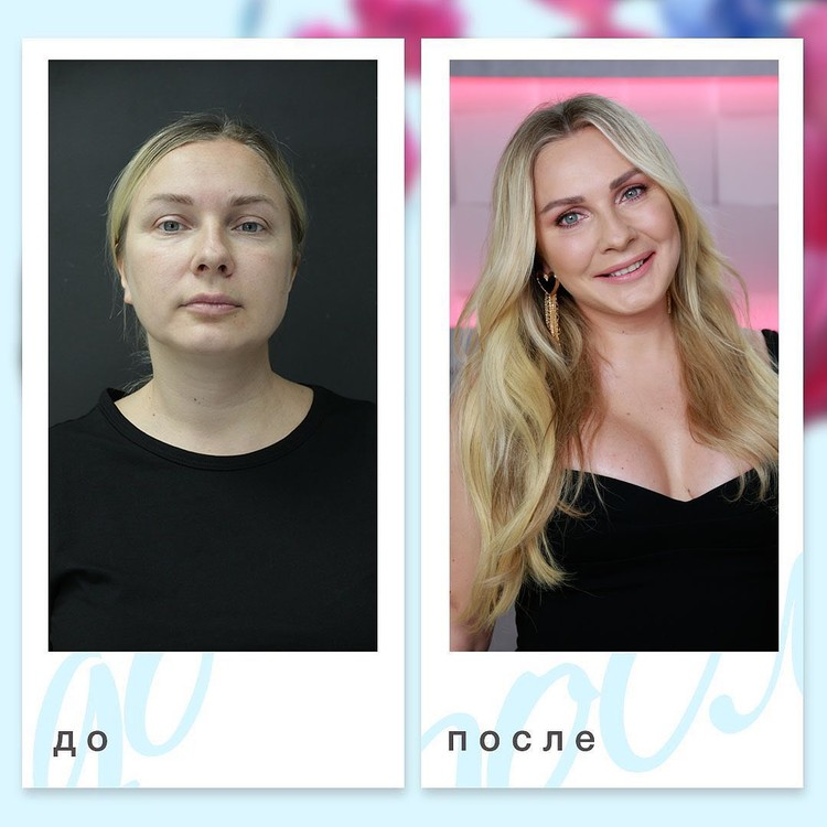 Анастасия Дашко увеличила грудь, сделал липосакцию и безоперационную подтяжку лица.