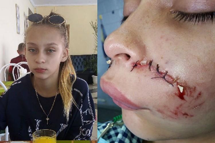 Так Олеся выглядела до нападения собаки и после. Фото: предоставлено Юлией Каблуковой