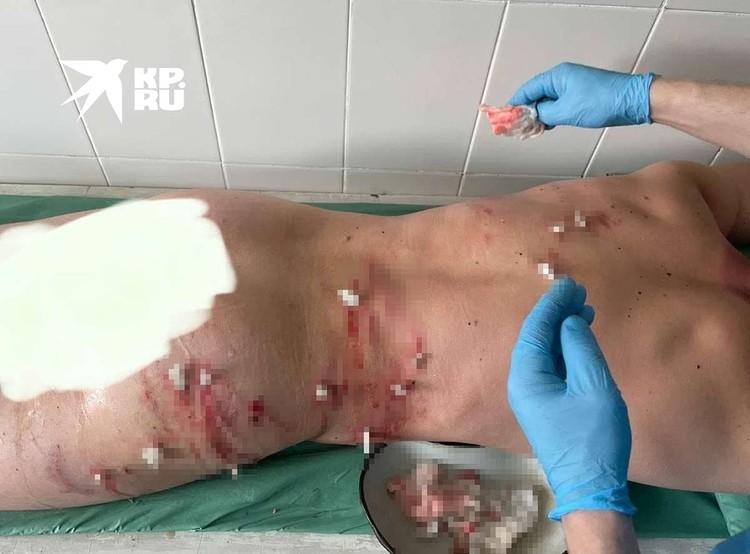 Повреждения после встречи с медведем Фото: соцсети Егора