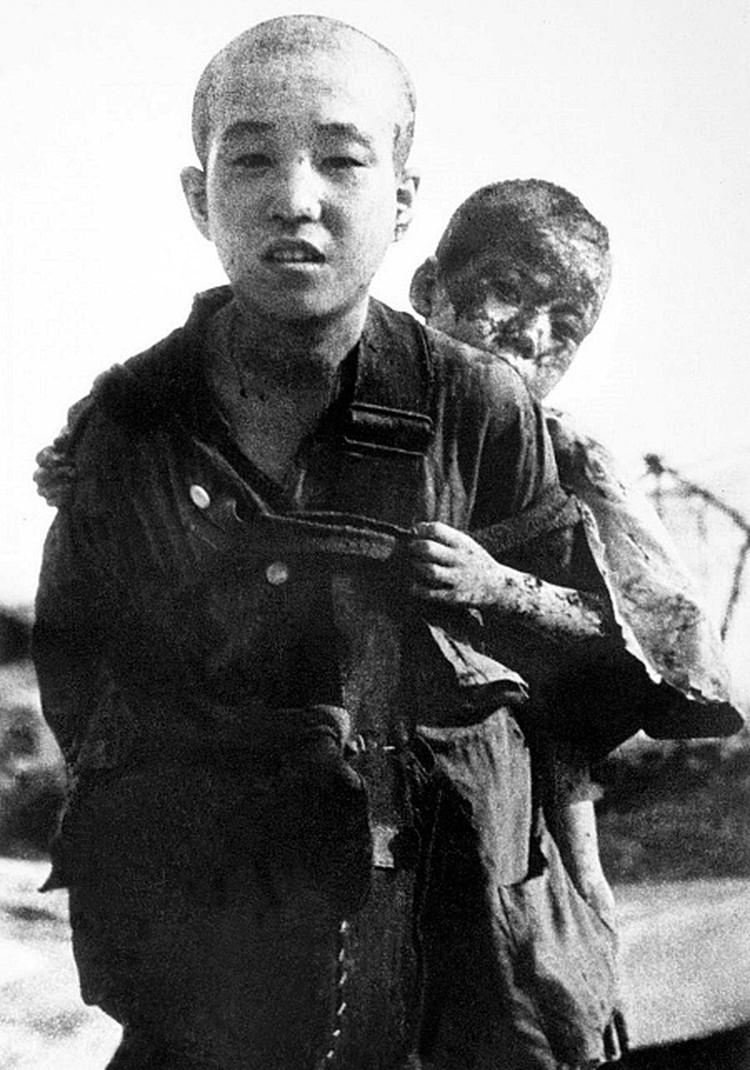 Мальчик несёт на спине своего получившего ожоги брата